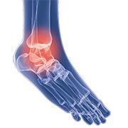 anatomisch-voet